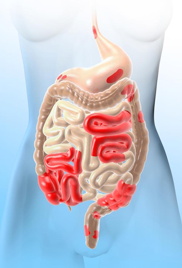 internal intestinal image