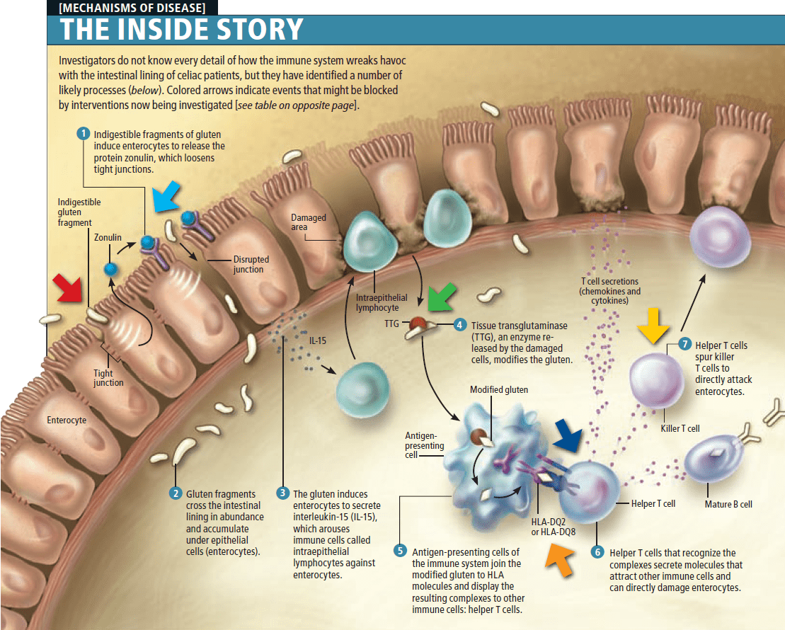 illustration of immune system deficiencies