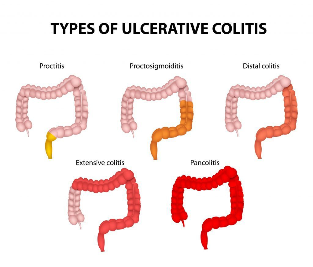5 drawings of ulcerative colitis