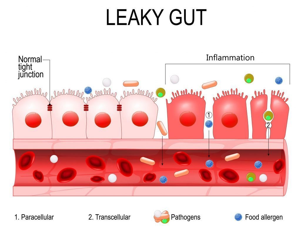 cross sectional diagram of leaky gut